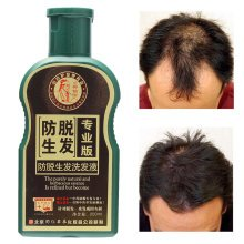 Natural Pure Herbaceous Essence Shampoo Growth Anti Hair Loss Thick Shedding Alopecia Proof